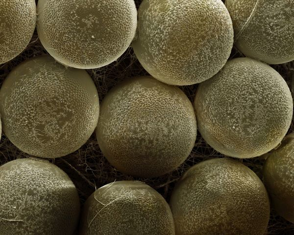 LRDS-429 Scanning Electron Micrograph (SEM): Spider Eggs Magnification x120 (if print A4 size: 29