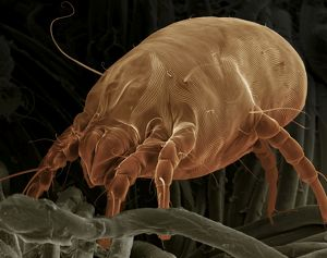 Scanning Electron Micrograph (SEM) Dust Mite