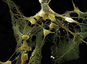Scanning Electron Micrograph (SEM): Nerve cells